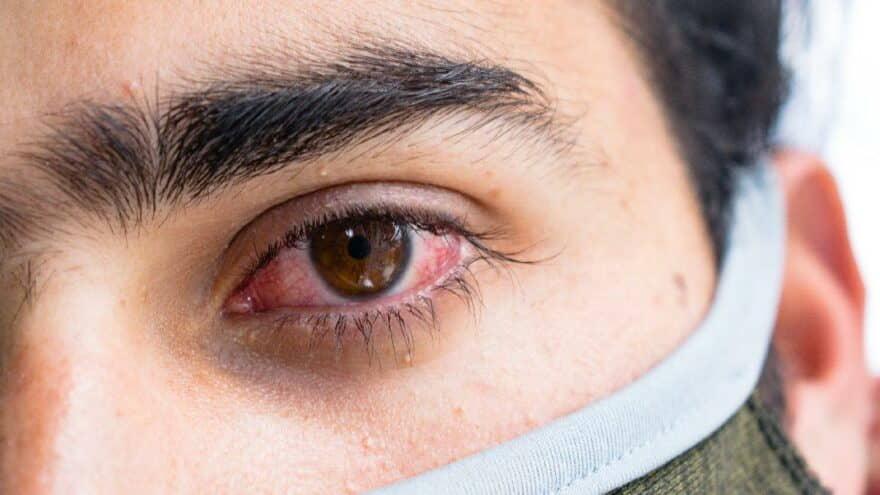 Kara Mantar Hastalığı Nedir Belirtileri Neler? Kara Mantar Bulaşıcı mı?